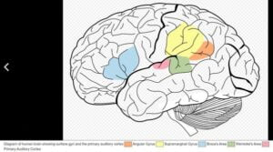 tinnitus brain